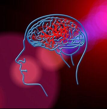 Udar mózgu - przyczyny, objawy, rehabilitacja