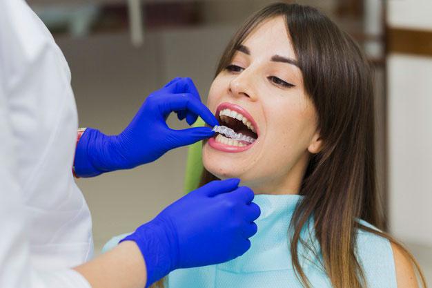 Rodzaje aparatów ortodontycznyc
